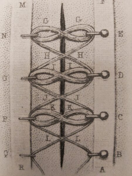 An illustrated diagram of a Roma medical procedure known as a 'fibulae' with letters set out accross it